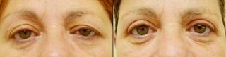 upperblepharoplasty3a