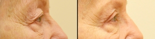 upperblepharoplasty1a