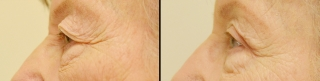 upperblepharoplasty1b