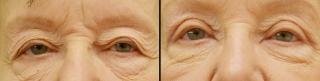 upperblepharoplasty1c