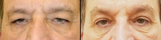 upperblepharoplasty2a