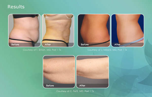 smartlipo-email-results-600x385