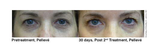 1-pelleve-before-after-lemke-eyes3