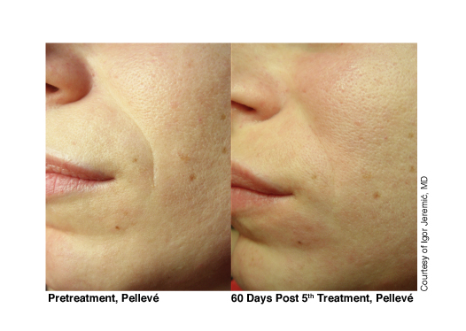 9-pelleve-before-after-treatment-photos